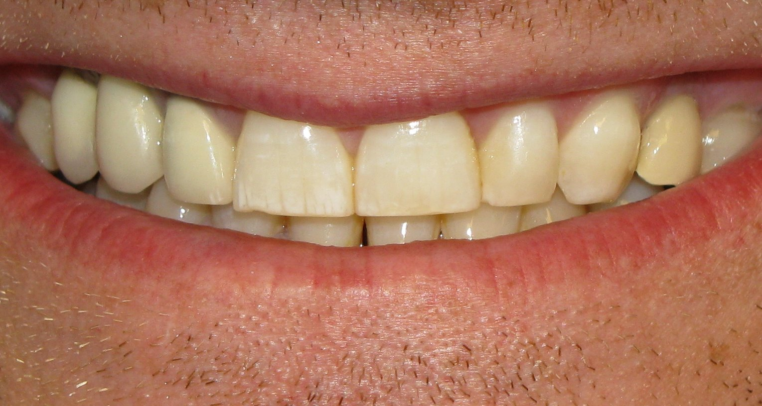 Dental Flourosis on front right tooth