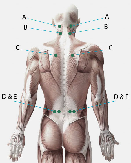 Treat depression with acupuncture and acupressure never press on areas where you have disc problems broken bone or other similar injuries acupressure points for depression solutioingenieria Image collections